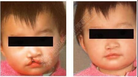 唇裂修复成功图片_唇裂的原因