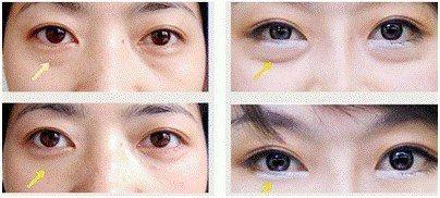卧蚕和眼袋的区别和产生方式