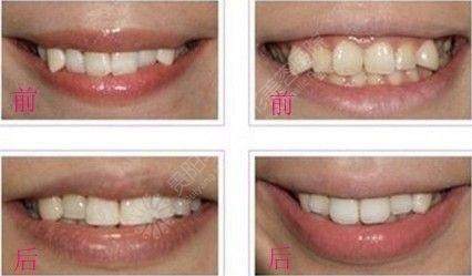 虎牙矫正3.JPG