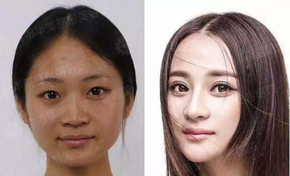 """》》》真人案例---胡悦 华美一韩式双眼皮传承韩式技术精髓,根据术前精准严格的测量,以及个人面部特征和偏好,设计双眼皮形态,包括:双眼皮的宽度、弧度和厚度(即重睑线下部分的厚薄),个性化选择平行型、开扇型、新月形;再通过术前眼部皮肤检测,选择适合的手术方式,个性化打造精细到毫米的魅力双眼皮。 》》》韩式双眼皮要怎样设计? [[img alt=""""贵阳华美一医院"""" src="""""""